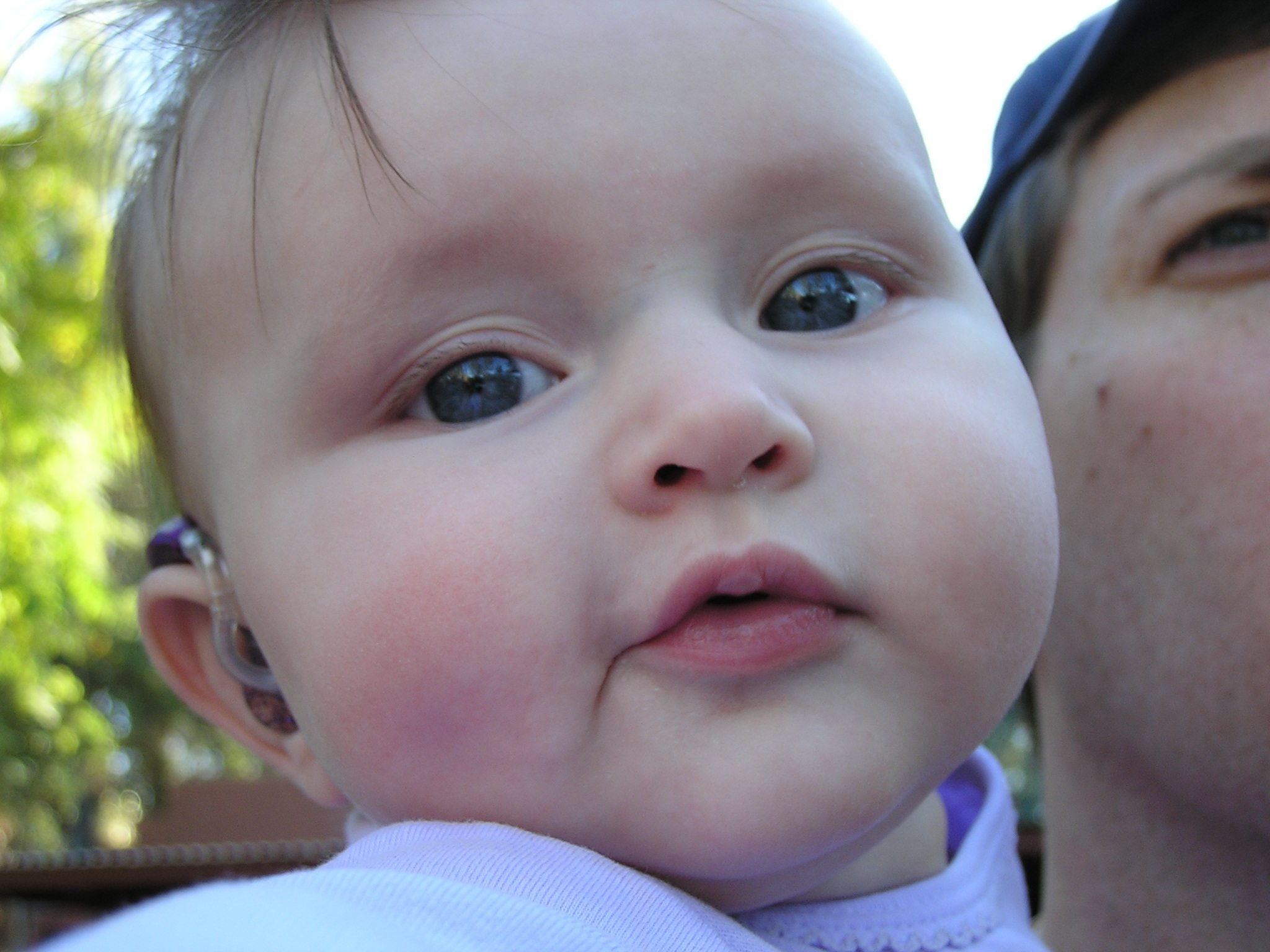 Close up picture of infant girl with hearing aid